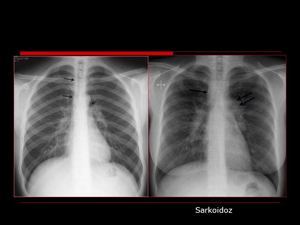 Mediastinal fibrozis Etyoloji: Enfeksiyon (histoplazma, TB) RT, otoimmün hastalık, ilaç tedavisi İdyopatik Klinik: SVKS, rekürren pnömoni, persisten atelektaziler, dispne, hemoptizi BT: Fokal veya invazif mediastinal kitle Tipik olarak unilateral Çoğunda kalsifikasyon (+)