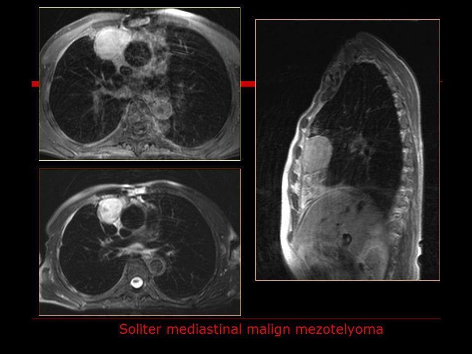 Soliter mediastinal malign mezotelyoma