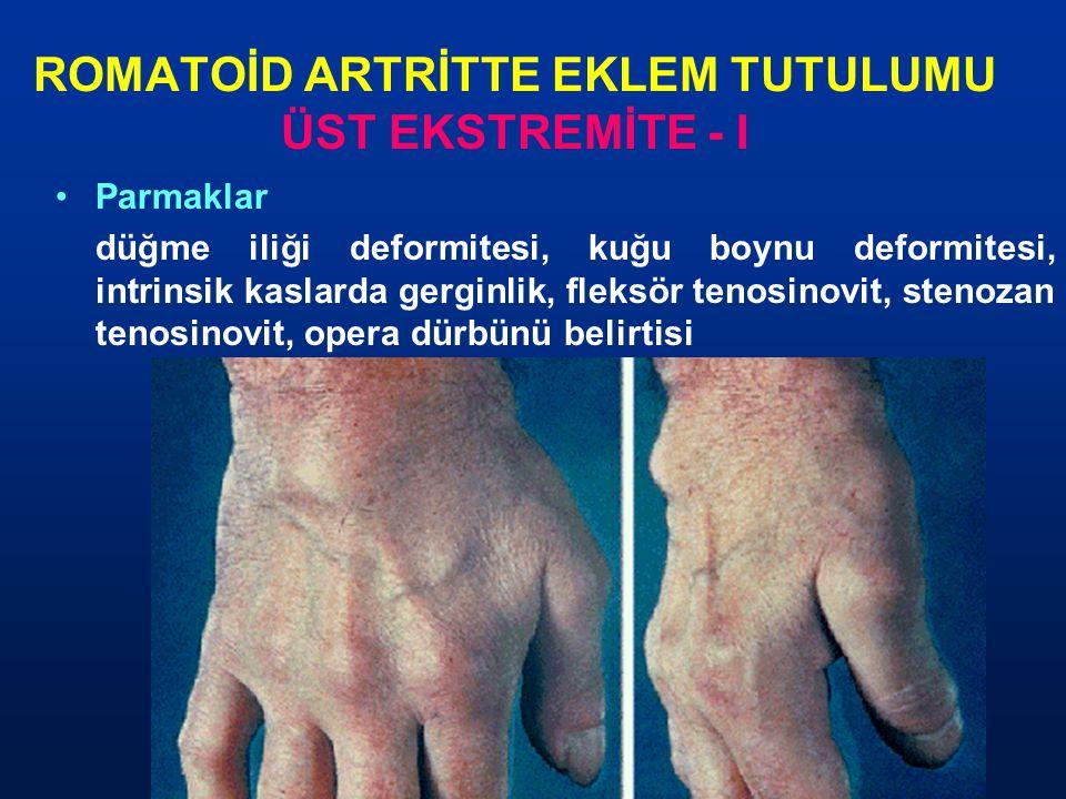 ROMATOİD ARTRİTTE EKLEM TUTULUMU ÜST EKSTREMİTE - I Parmaklar düğme iliği deformitesi, kuğu boynu deformitesi, intrinsik kaslarda gerginlik, fleksör t