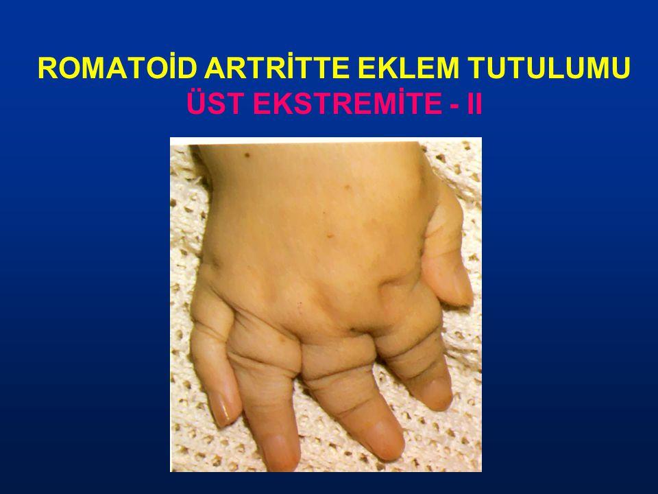 ROMATOİD ARTRİTTE EKLEM TUTULUMU ÜST EKSTREMİTE - II