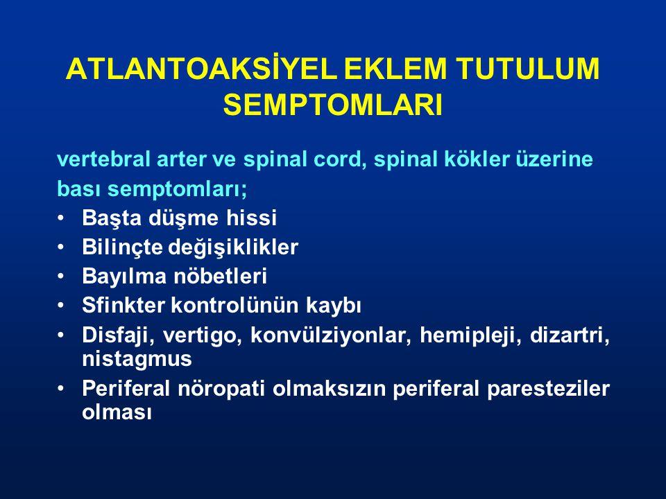 ATLANTOAKSİYEL EKLEM TUTULUM SEMPTOMLARI vertebral arter ve spinal cord, spinal kökler üzerine bası semptomları; Başta düşme hissi Bilinçte değişiklik