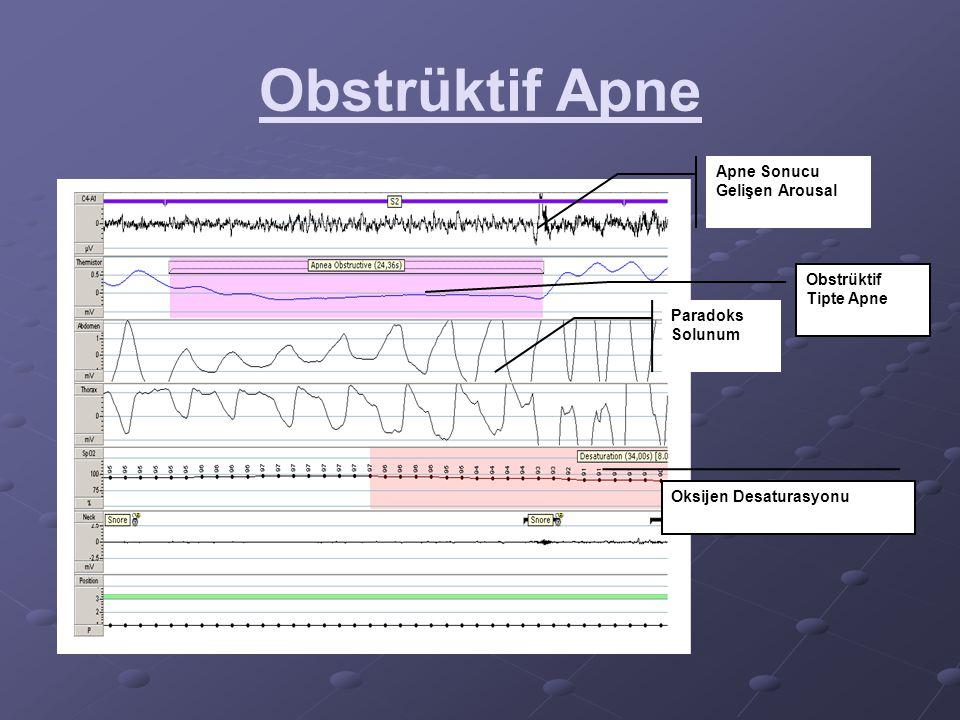 Obstrüktif Apne Paradoks Solunum Oksijen Desaturasyonu Obstrüktif Tipte Apne Apne Sonucu Gelişen Arousal