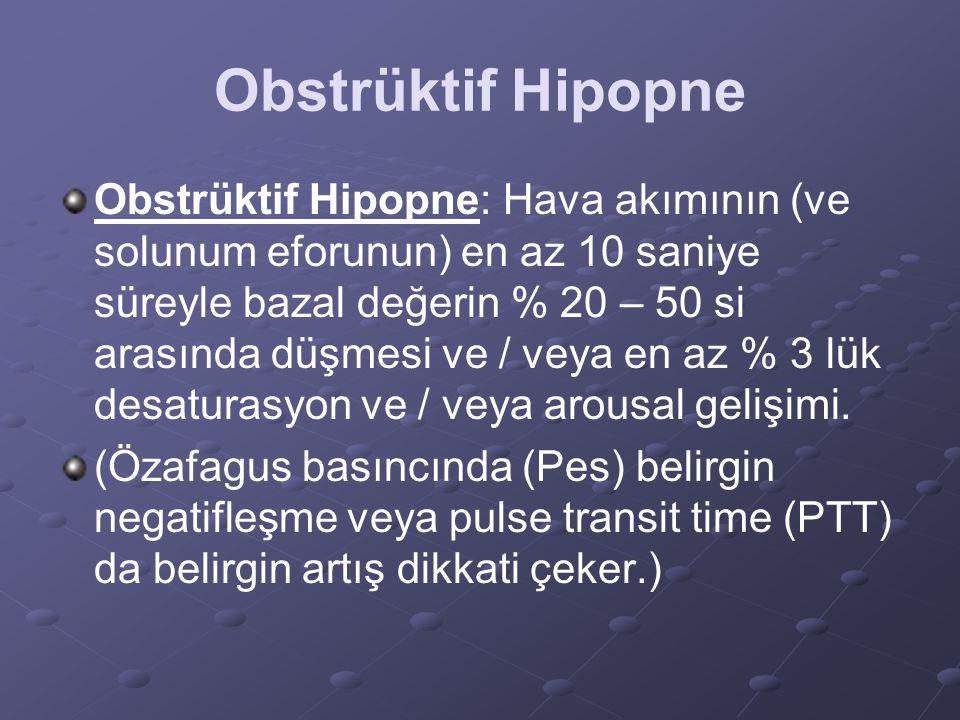 Obstrüktif Hipopne Obstrüktif Hipopne: Hava akımının (ve solunum eforunun) en az 10 saniye süreyle bazal değerin % 20 – 50 si arasında düşmesi ve / ve