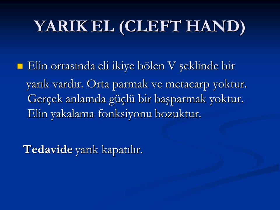 YARIK EL (CLEFT HAND) Elin ortasında eli ikiye bölen V şeklinde bir Elin ortasında eli ikiye bölen V şeklinde bir yarık vardır. Orta parmak ve metacar