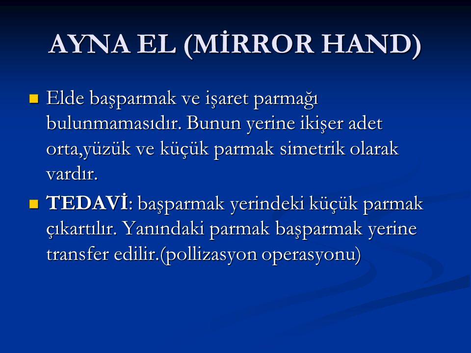 AYNA EL (MİRROR HAND) Elde başparmak ve işaret parmağı bulunmamasıdır. Bunun yerine ikişer adet orta,yüzük ve küçük parmak simetrik olarak vardır. Eld