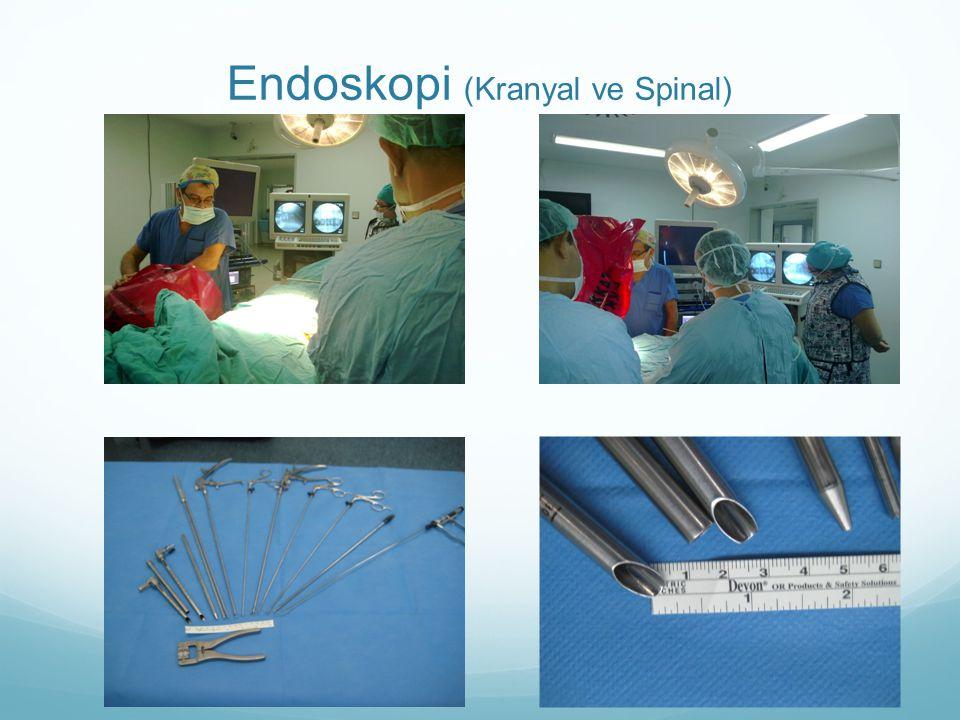 Endoskopi (Kranyal ve Spinal)