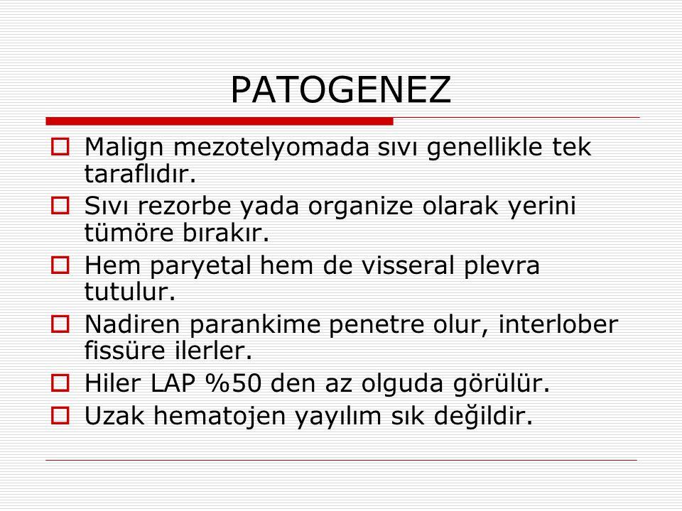 PATOGENEZ  Malign mezotelyomada sıvı genellikle tek taraflıdır.