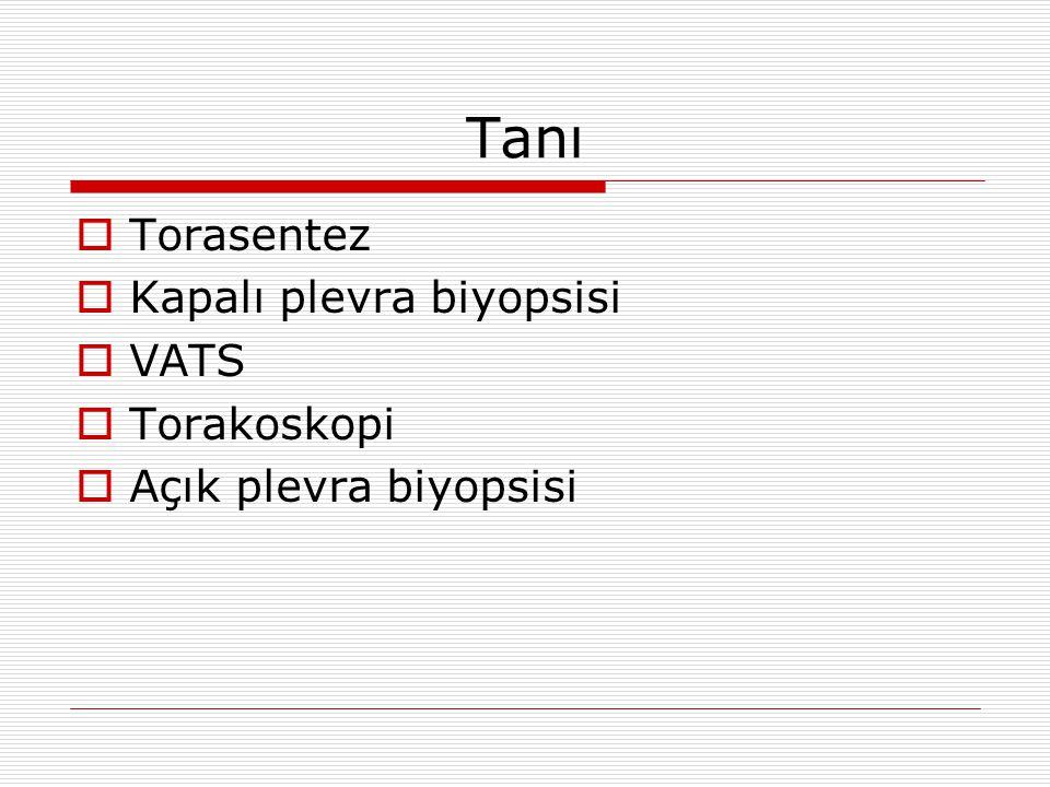 Tanı  Torasentez  Kapalı plevra biyopsisi  VATS  Torakoskopi  Açık plevra biyopsisi