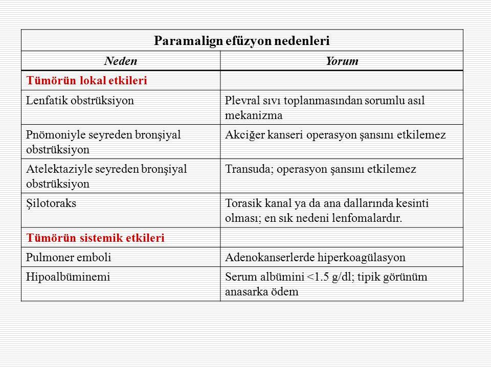 Paramalign efüzyon nedenleri NedenYorum Tümörün lokal etkileri Lenfatik obstrüksiyonPlevral sıvı toplanmasından sorumlu asıl mekanizma Pnömoniyle seyreden bronşiyal obstrüksiyon Akciğer kanseri operasyon şansını etkilemez Atelektaziyle seyreden bronşiyal obstrüksiyon Transuda; operasyon şansını etkilemez ŞilotoraksTorasik kanal ya da ana dallarında kesinti olması; en sık nedeni lenfomalardır.