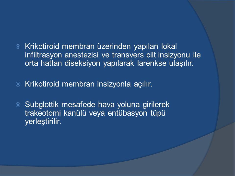  Krikotiroid membran üzerinden yapılan lokal infiltrasyon anestezisi ve transvers cilt insizyonu ile orta hattan diseksiyon yapılarak larenkse ulaşılır.