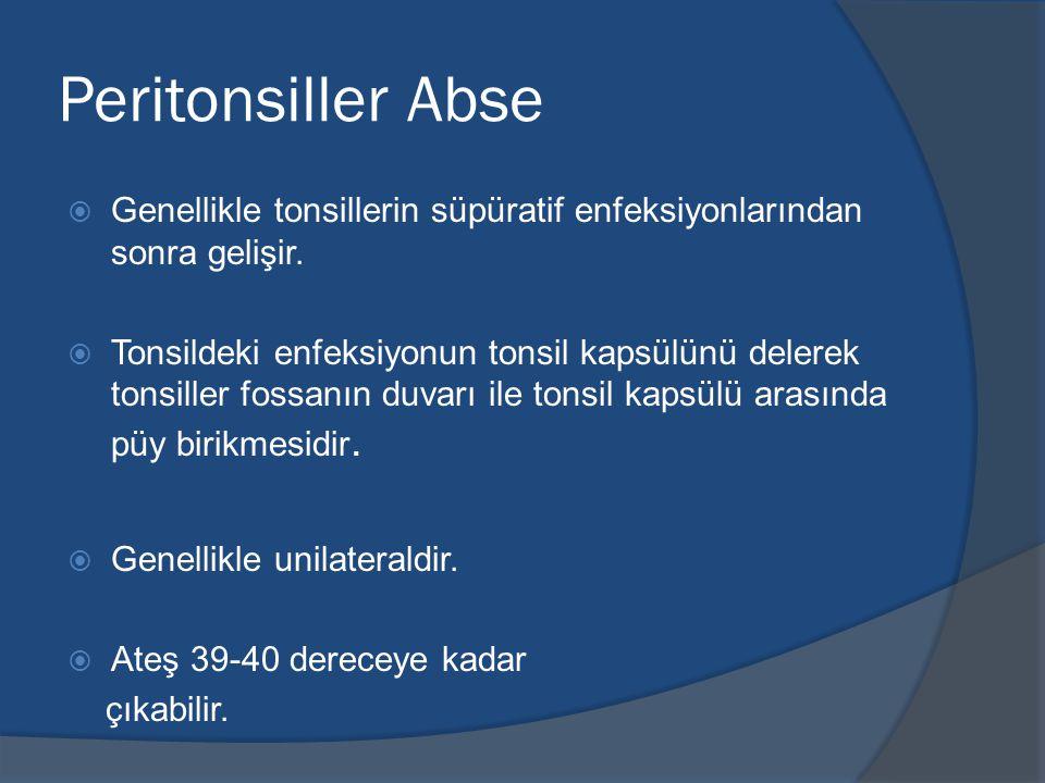 Peritonsiller Abse  Genellikle tonsillerin süpüratif enfeksiyonlarından sonra gelişir.