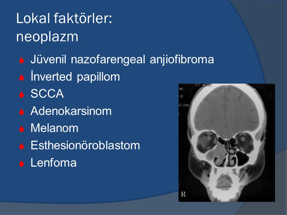 Lokal faktörler: neoplazm  Jüvenil nazofarengeal anjiofibroma  İnverted papillom  SCCA  Adenokarsinom  Melanom  Esthesionöroblastom  Lenfoma