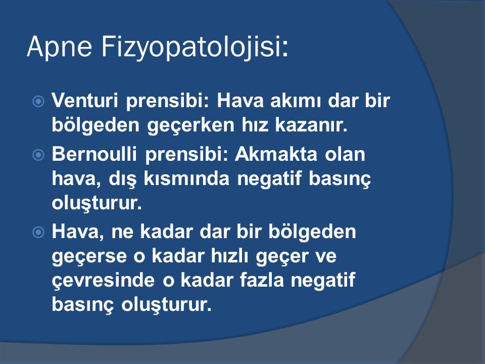 Apne Fizyopatolojisi:  Venturi prensibi: Hava akımı dar bir bölgeden geçerken hız kazanır.