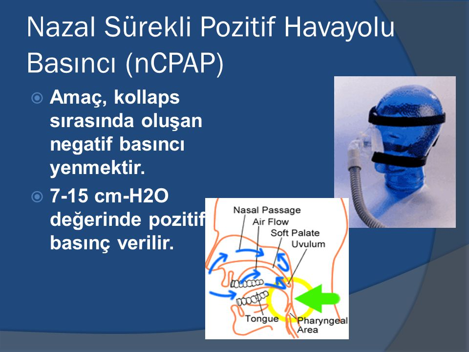 Nazal Sürekli Pozitif Havayolu Basıncı (nCPAP)  Amaç, kollaps sırasında oluşan negatif basıncı yenmektir.
