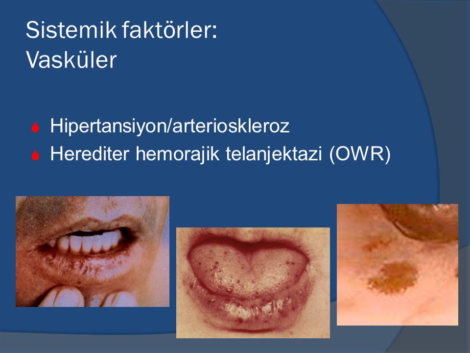 Sistemik faktörler: Vasküler  Hipertansiyon/arterioskleroz  Herediter hemorajik telanjektazi (OWR)