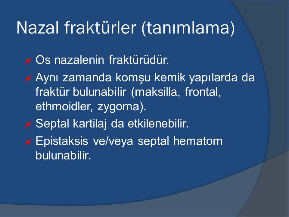 Nazal fraktürler (tanımlama)  Os nazalenin fraktürüdür.