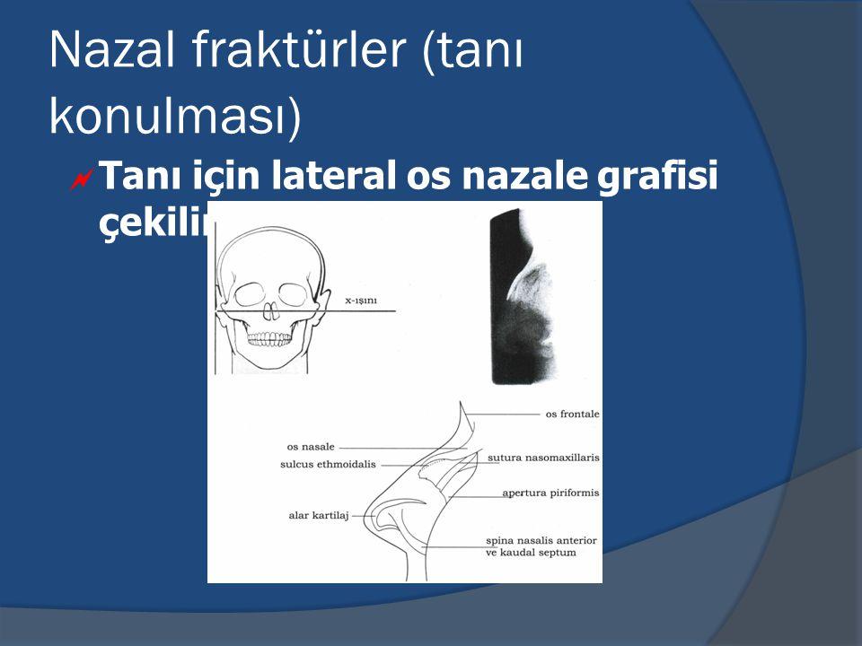 Nazal fraktürler (tanı konulması)  Tanı için lateral os nazale grafisi çekilir.