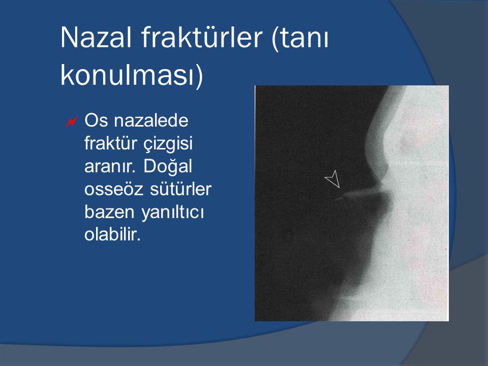 Nazal fraktürler (tanı konulması)  Os nazalede fraktür çizgisi aranır.