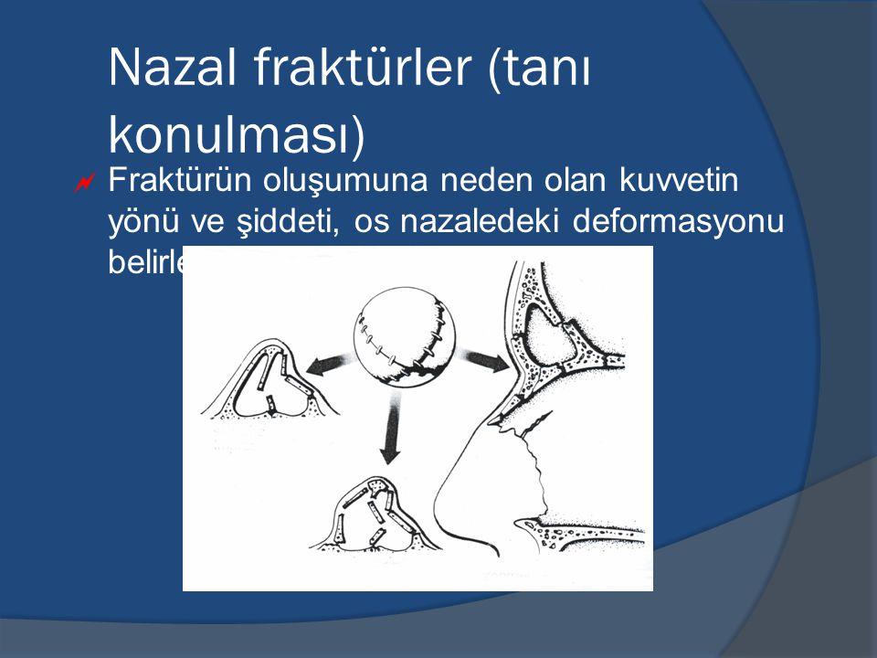 Nazal fraktürler (tanı konulması)  Fraktürün oluşumuna neden olan kuvvetin yönü ve şiddeti, os nazaledeki deformasyonu belirler.