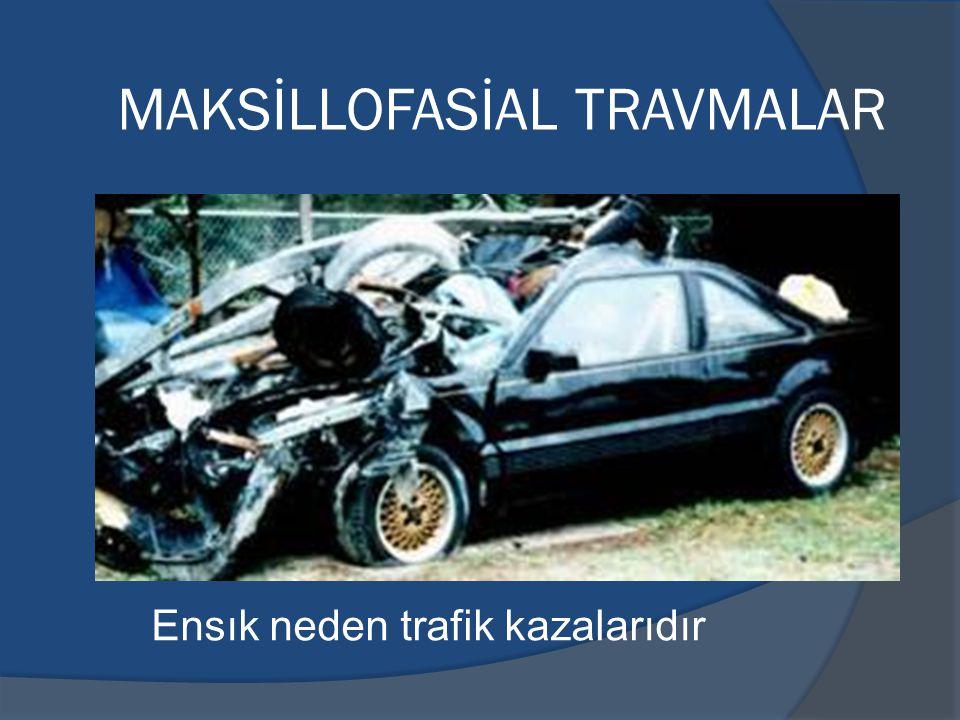 MAKSİLLOFASİAL TRAVMALAR Ensık neden trafik kazalarıdır