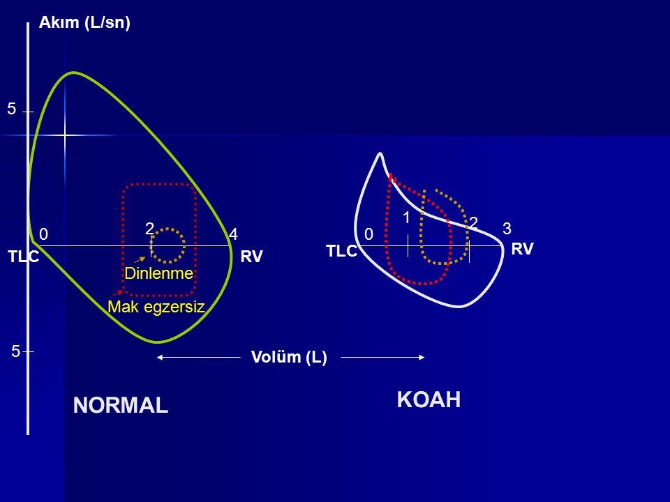 TLCRV Dinlenme Mak egzersiz TLC RV 2 2 1 040 3 NORMAL KOAH Akım (L/sn) Volüm (L) 5 5