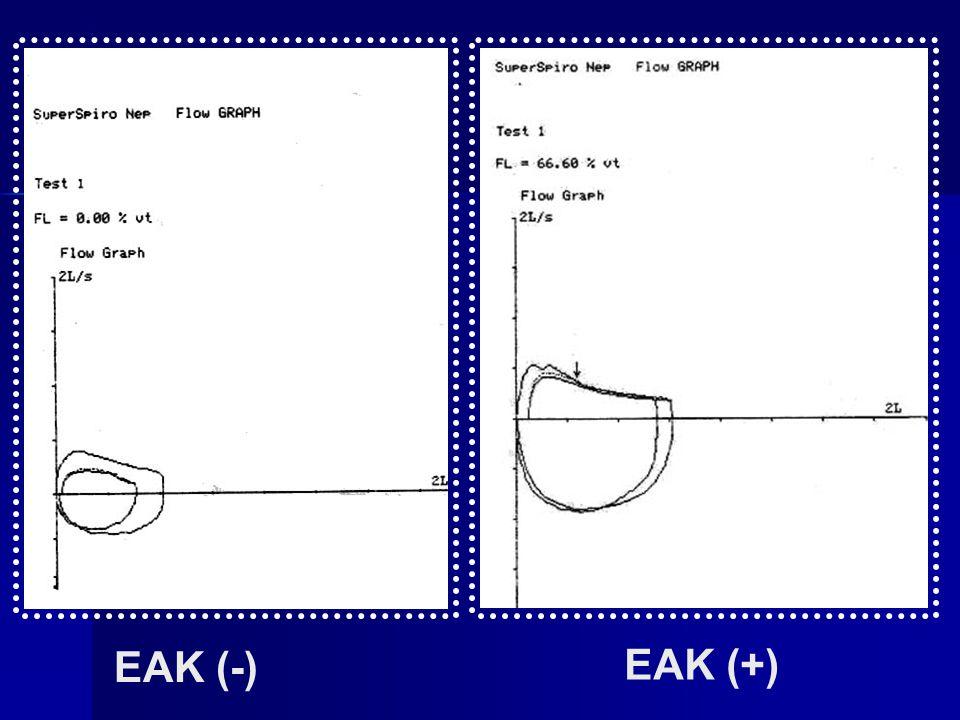 EAK (-) EAK (+)