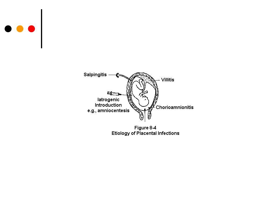 Maternal çalışmalar Plasenta ve fetal membranların incelenmesi Koryoamniyonit