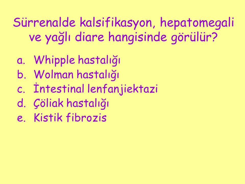 Sürrenalde kalsifikasyon, hepatomegali ve yağlı diare hangisinde görülür? a.Whipple hastalığı b.Wolman hastalığı c.İntestinal lenfanjiektazi d.Çöliak