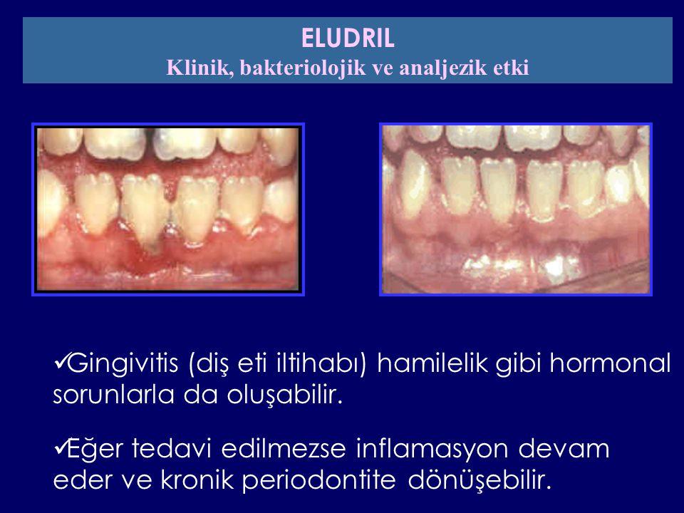 Gingivitis (diş eti iltihabı) hamilelik gibi hormonal sorunlarla da oluşabilir. Eğer tedavi edilmezse inflamasyon devam eder ve kronik periodontite dö
