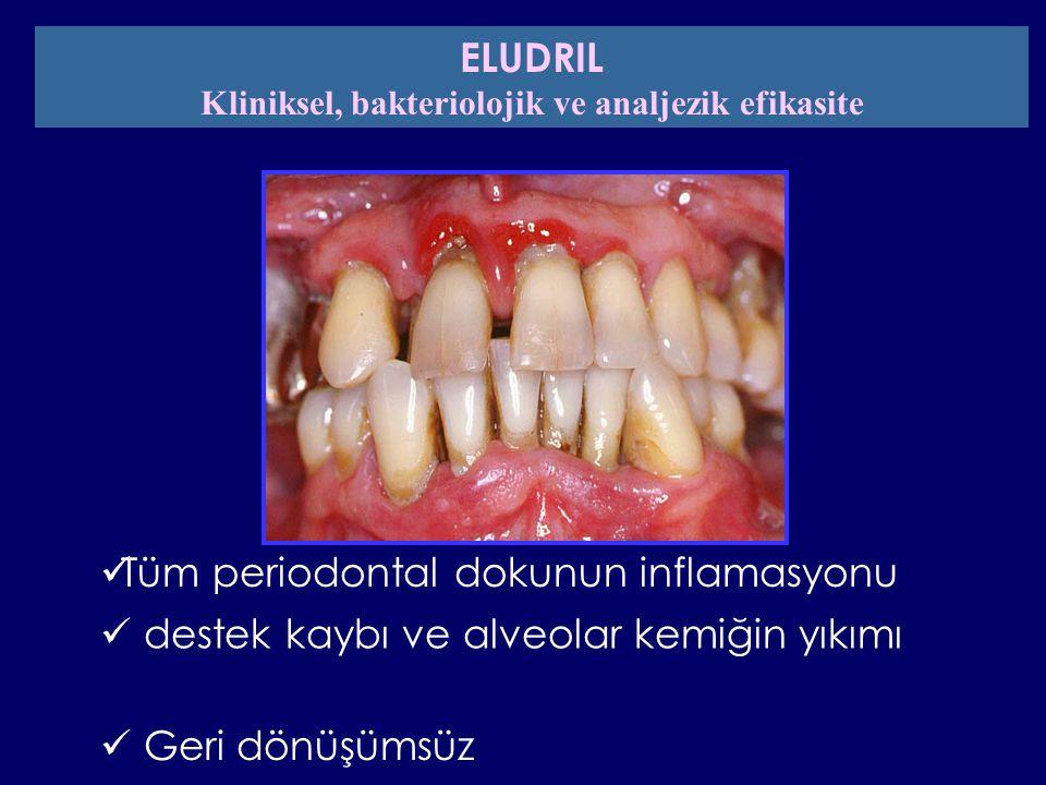 periodontit üzerindeki lokal tedavide DC 071 mouthwash'ın plaseboya karşı etki ve tolerans çalışması PI Eludril -16.6% Plasebo 0% p= 0.0001 D15 Eludril -7.9% Plasebo -3.6% p= 0.0001 D56 GI -8.5%-5.4% p= 0.0001 -6.2% -4.8% p= 0.0001 KLİNİKSEL SONUÇLAR PBI -18%-10.5% p= 0.0001 -6.6%-6.7% NS ELUDRIL = 4413 sitesPLASEBO = 4210 sites IN PRESS ELUDRIL Klinik, bakteriolojik ve analjezik etki