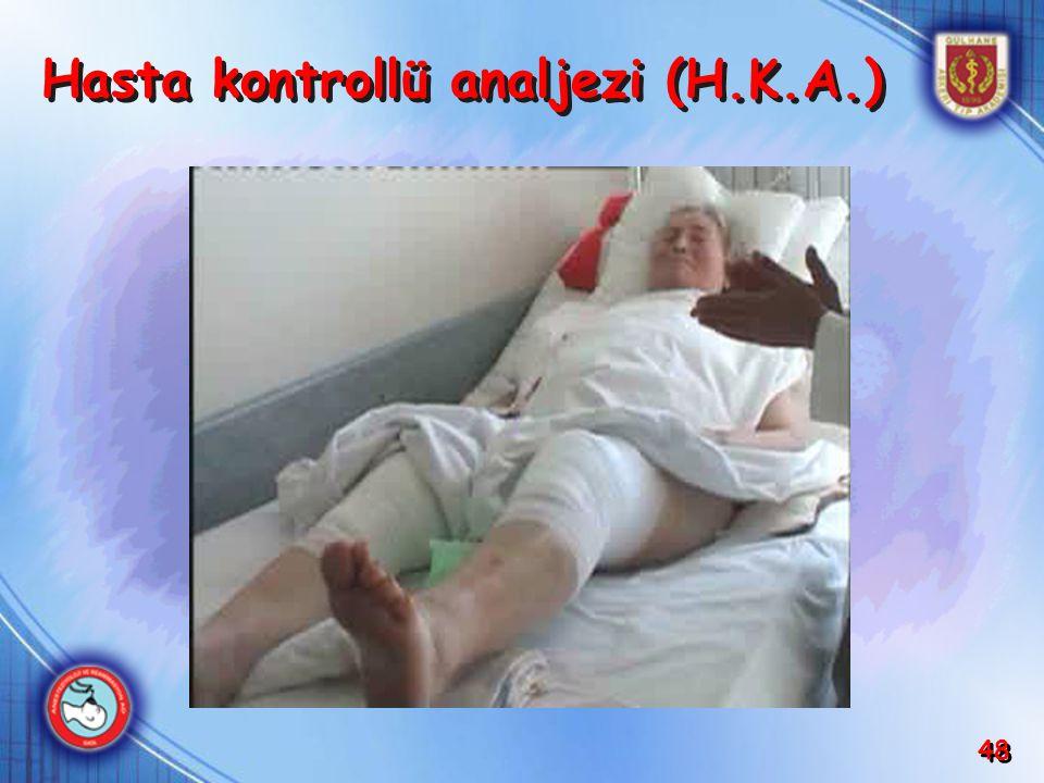 48 Hasta kontrollü analjezi (H.K.A.)