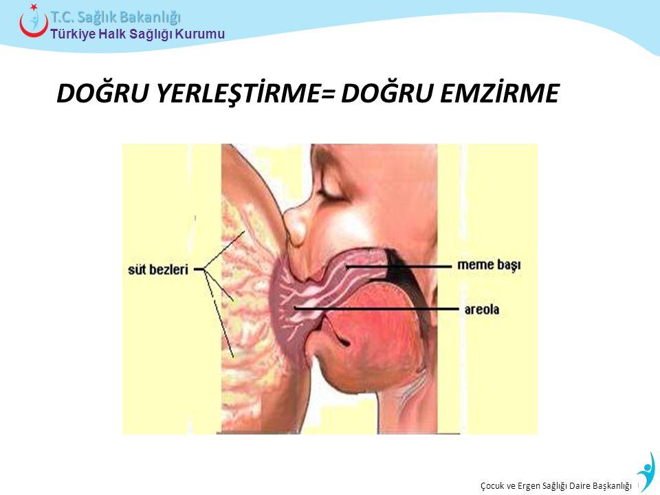 İstatistik ve Bilgi İşlem Daire Başkanlığı Türkiye Halk Sağlığı Kurumu T.C. Sağlık Bakanlığı Çocuk ve Ergen Sağlığı Daire Başkanlığı DOĞRU YERLEŞTİRME