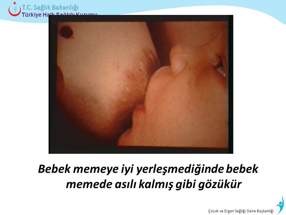 İstatistik ve Bilgi İşlem Daire Başkanlığı Türkiye Halk Sağlığı Kurumu T.C. Sağlık Bakanlığı Çocuk ve Ergen Sağlığı Daire Başkanlığı Bebek memeye iyi