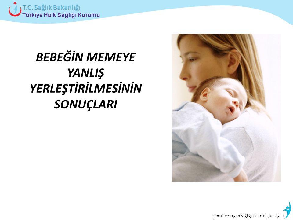İstatistik ve Bilgi İşlem Daire Başkanlığı Türkiye Halk Sağlığı Kurumu T.C. Sağlık Bakanlığı Çocuk ve Ergen Sağlığı Daire Başkanlığı BEBEĞİN MEMEYE YA