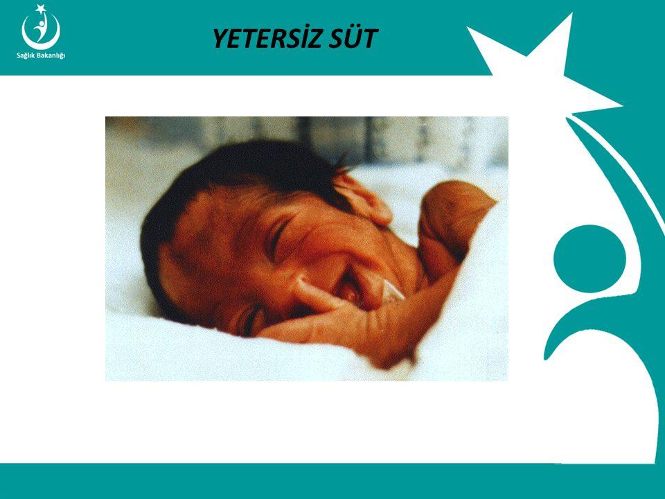 İstatistik ve Bilgi İşlem Daire Başkanlığı Türkiye Halk Sağlığı Kurumu T.C. Sağlık Bakanlığı Çocuk ve Ergen Sağlığı Daire Başkanlığı YETERSİZ SÜT