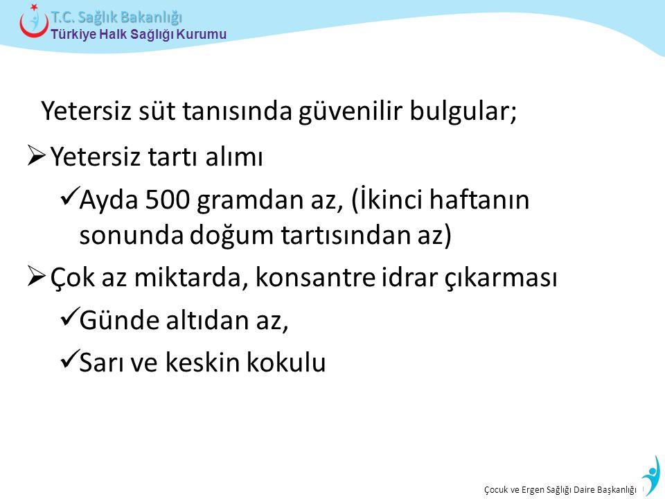 İstatistik ve Bilgi İşlem Daire Başkanlığı Türkiye Halk Sağlığı Kurumu T.C. Sağlık Bakanlığı Çocuk ve Ergen Sağlığı Daire Başkanlığı Yetersiz süt tanı