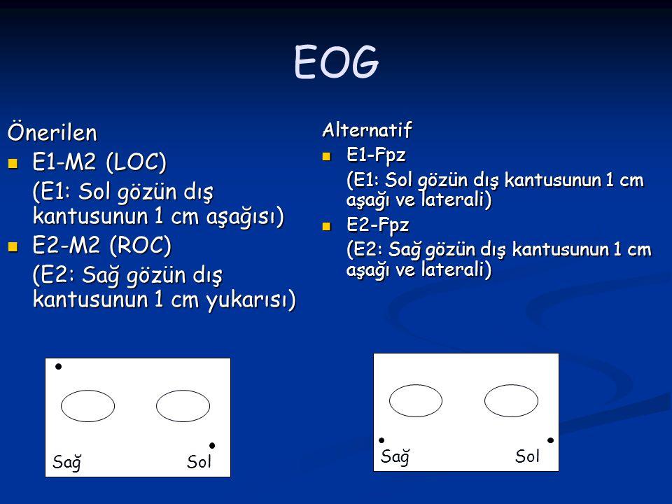 EOG Önerilen E1-M2 (LOC) E1-M2 (LOC) (E1: Sol gözün dış kantusunun 1 cm aşağısı) E2-M2 (ROC) E2-M2 (ROC) (E2: Sağ gözün dış kantusunun 1 cm yukarısı)