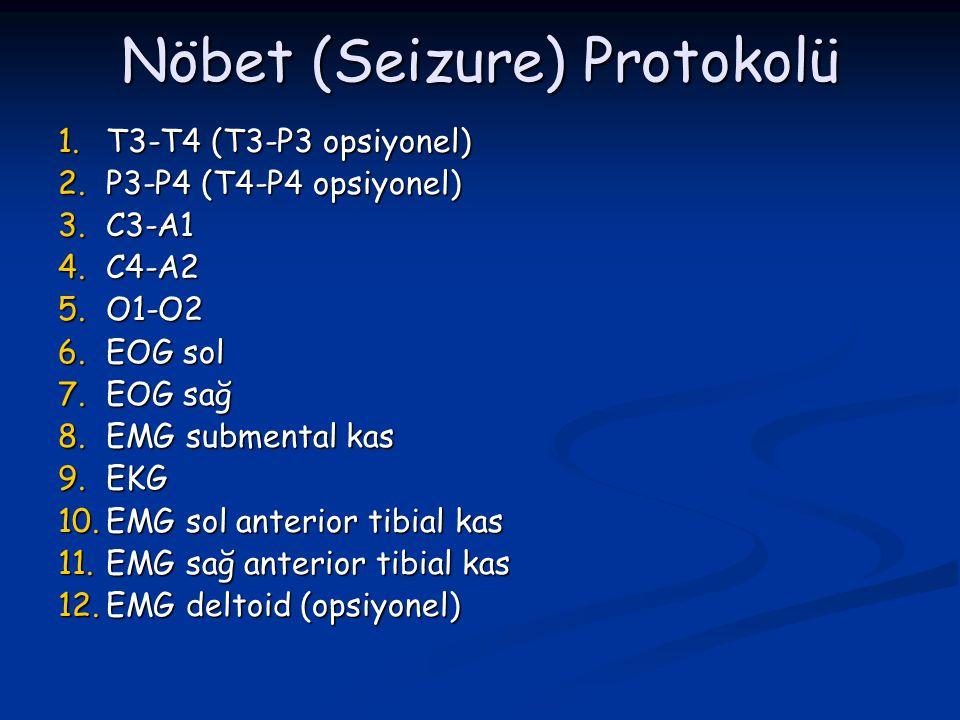 Nöbet (Seizure) Protokolü 1.T3-T4 (T3-P3 opsiyonel) 2.P3-P4 (T4-P4 opsiyonel) 3.C3-A1 4.C4-A2 5.O1-O2 6.EOG sol 7.EOG sağ 8.EMG submental kas 9.EKG 10