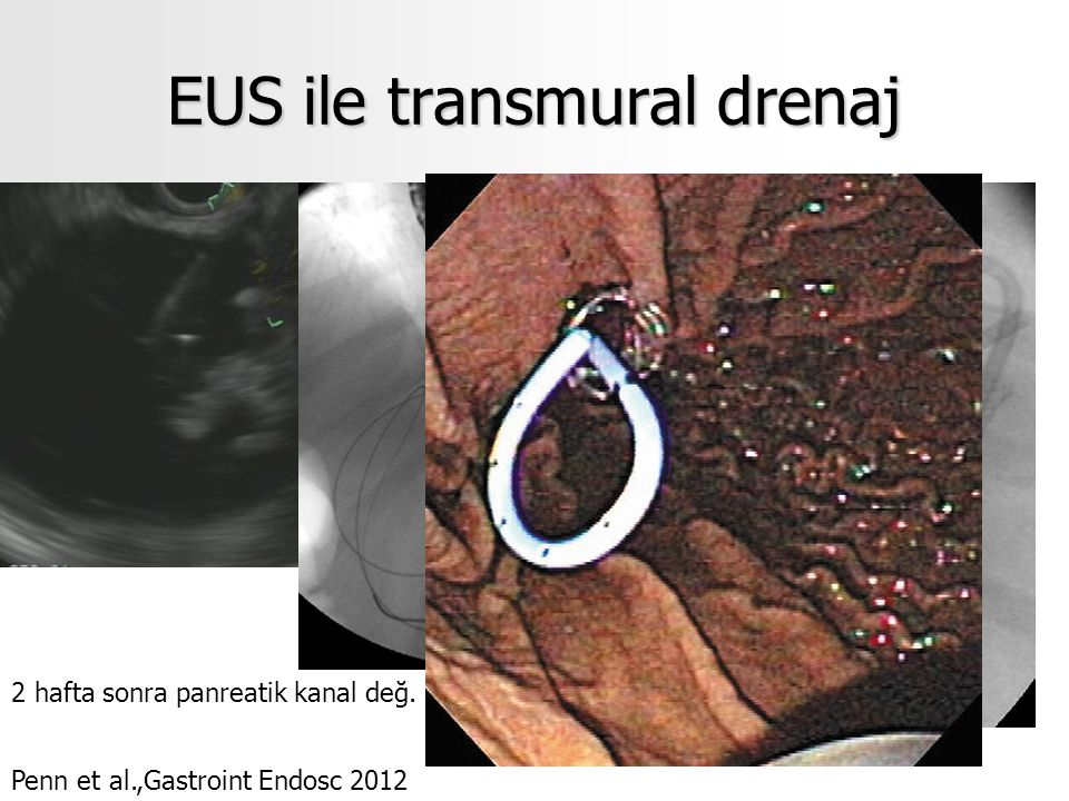 EUS ile transmural drenaj Penn et al.,Gastroint Endosc 2012 2 hafta sonra panreatik kanal değ.