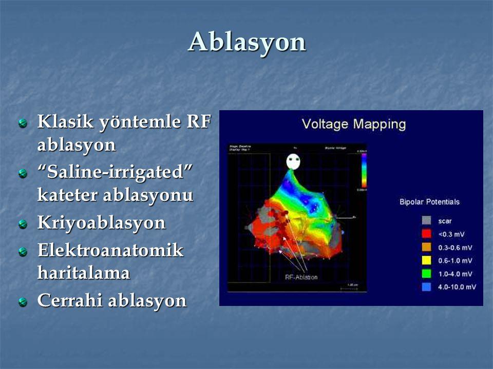 "Ablasyon Klasik yöntemle RF ablasyon ""Saline-irrigated"" kateter ablasyonu Kriyoablasyon Elektroanatomik haritalama Cerrahi ablasyon"