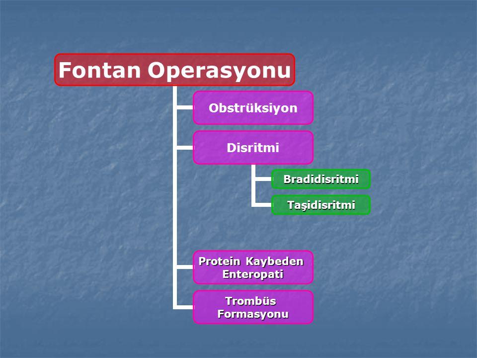 Fontan Operasyonu Obstrüksiyon Disritmi Bradidisritmi Taşidisritmi Protein Kaybeden Enteropati TrombüsFormasyonu