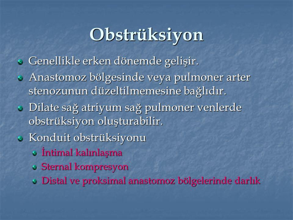 Obstrüksiyon Genellikle erken dönemde gelişir. Anastomoz bölgesinde veya pulmoner arter stenozunun düzeltilmemesine bağlıdır. Dilate sağ atriyum sağ p