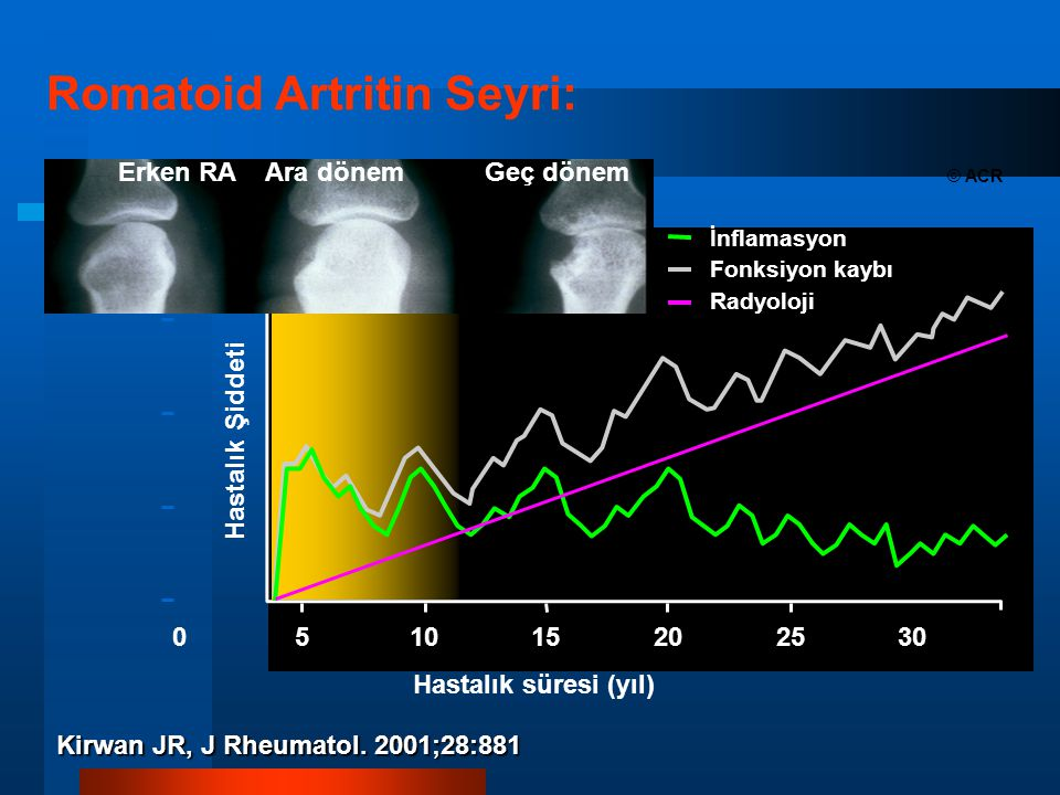 Hastalık Şiddeti 0 Hastalık süresi (yıl) 51015202530 Romatoid Artritin Seyri: Kirwan JR, J Rheumatol.