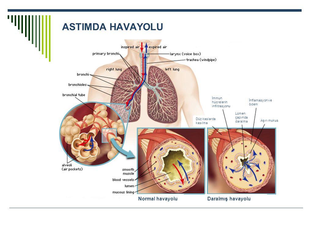 ASTIMDA HAVAYOLU Düz kaslarda kasılma Lümen çapında daralma İnflamasyon ve ödem Aşırı mukus İmmun hücrelerin infiltrasyonu Daralmış havayoluNormal hav