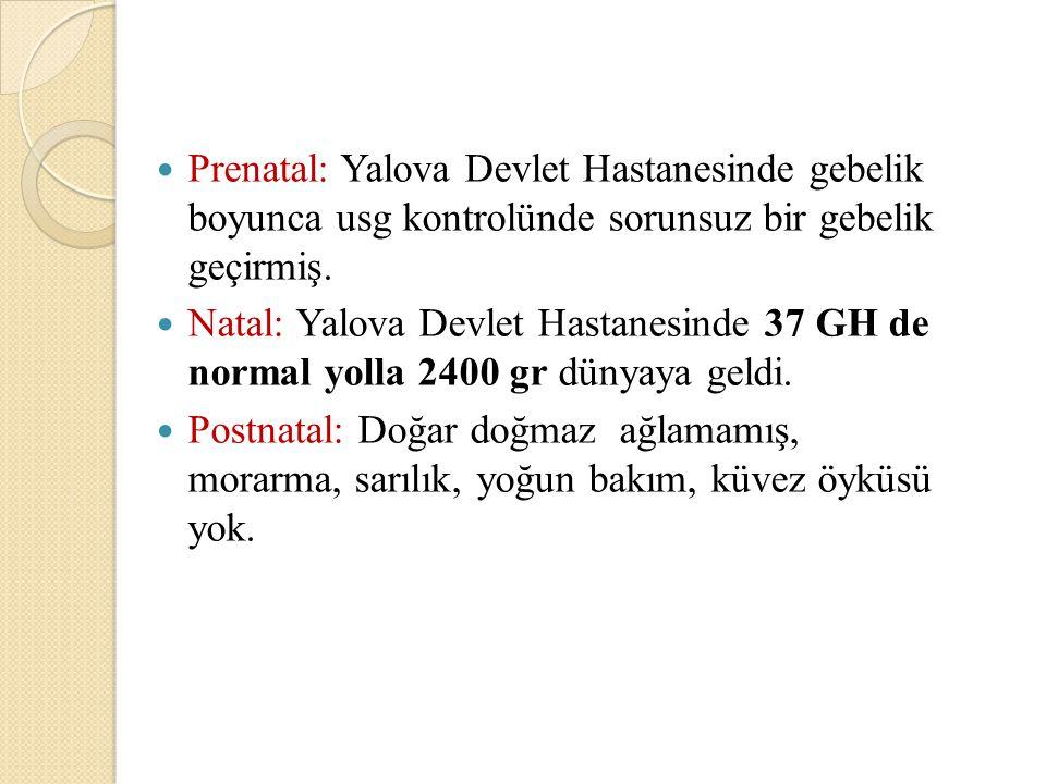 Prenatal: Yalova Devlet Hastanesinde gebelik boyunca usg kontrolünde sorunsuz bir gebelik geçirmiş. Natal: Yalova Devlet Hastanesinde 37 GH de normal