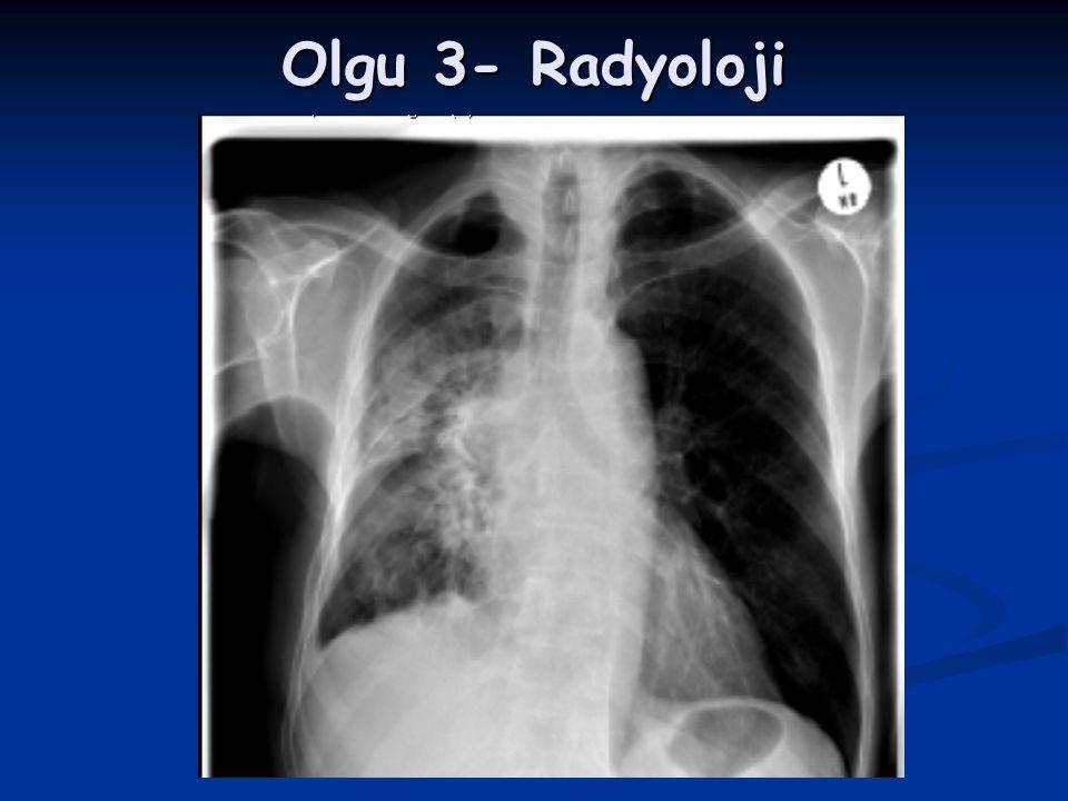 Olgu 3- Radyoloji