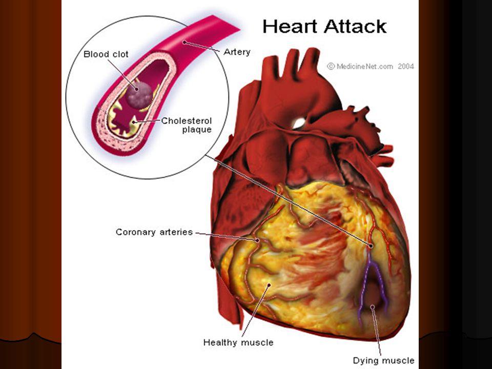 İşte size, kalp krizini anlatan güzel bir makale...