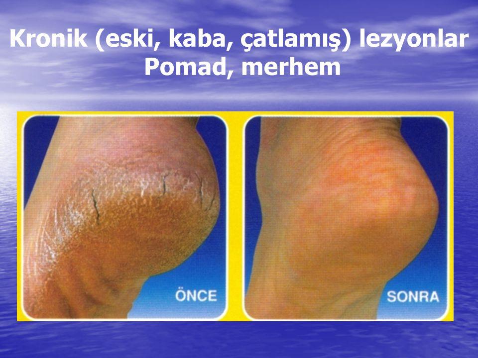 Kronik (eski, kaba, çatlamış) lezyonlar Pomad, merhem