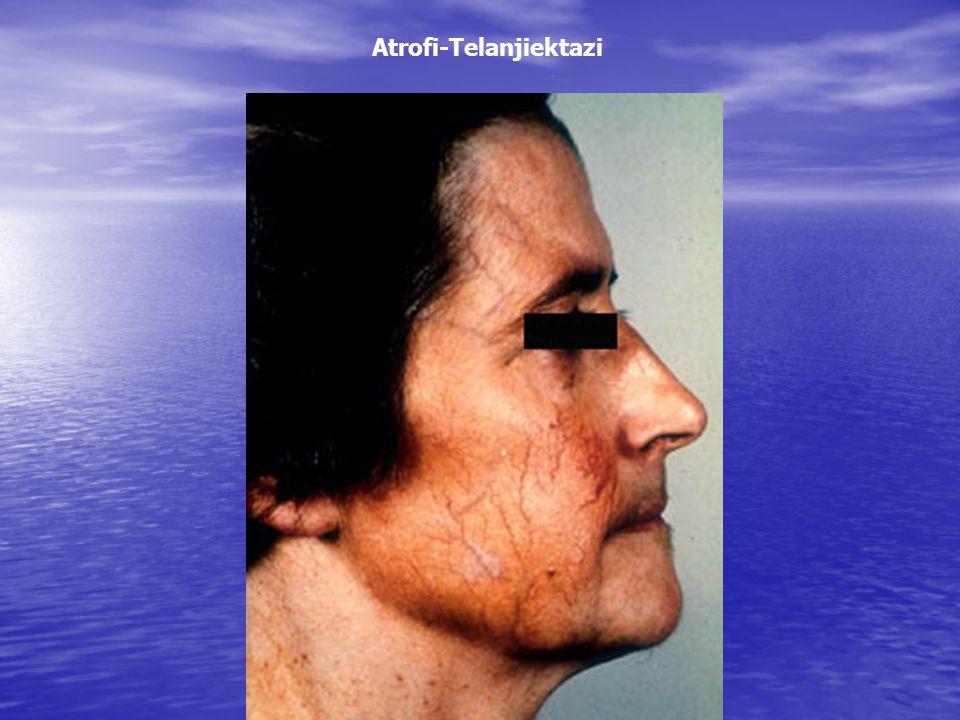 Atrofi-Telanjiektazi
