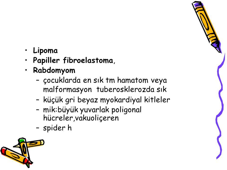 Lipoma Papiller fibroelastoma, Rabdomyom –çocuklarda en sık tm hamatom veya malformasyon tuberosklerozda sık –küçük gri beyaz myokardiyal kitleler –mi